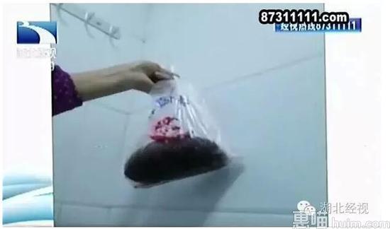武汉多家医院暗藏胎盘交易 最低只要25元